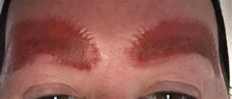 Mother shares horrific photos of eyebrow tattoo infection